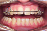 Removable Braces